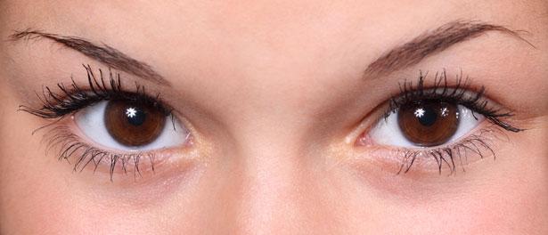 En øjenlågsoperation kan være nødvendig, før du tror det!