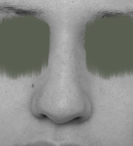 Næseoperation hos Rhinoklinikken